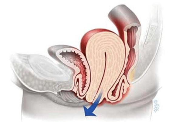 Pourquoi l'utérus fait mal ?